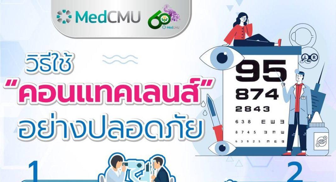 """จักษุแพทย์ มช. แนะวิธีใช้ """"คอนแทคเลนส์"""" อย่างปลอดภัยและถูกต้อง เพื่อป้องกันการเกิดอันตรายต่อดวงตา"""